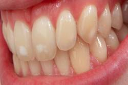 Fluoridation to the teeth can be seen by the by white patches formed