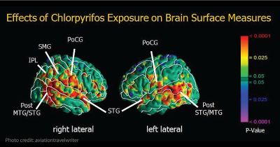 Brain exposure to pesticides.