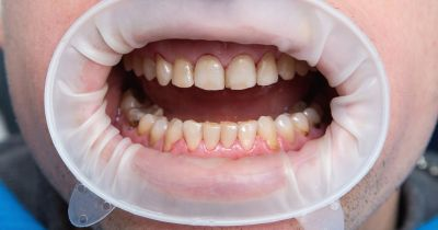 young man with dental fluorosis at the dentist