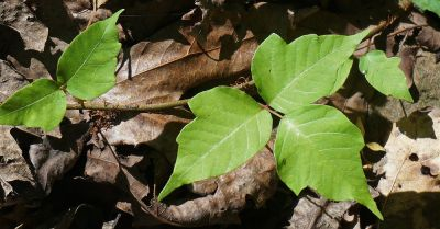 Best Home Remedies For Poison Ivy