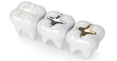 rendering of three teeth with different styles of cavity fillings